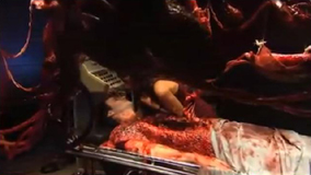 autopsy-gore